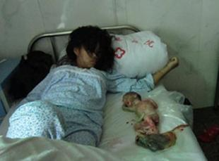 Chinese Woman Forcibly Aborted for Failure to Pay Fine (Graphic)