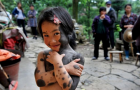 Chinese Girl Covered in Black Fur Hopes for a New Life:
