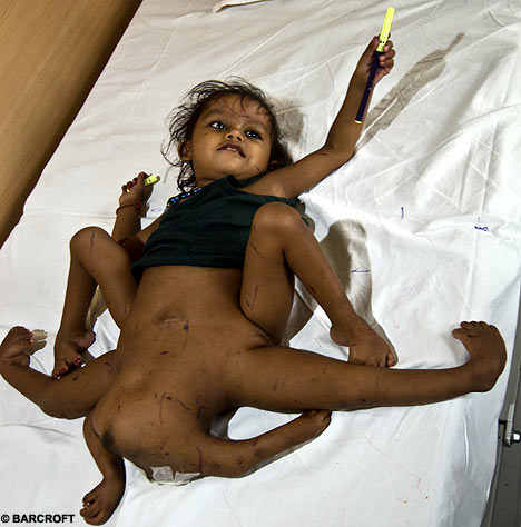 Hindu Goddess Born With 4 Legs and 4 Arms picture