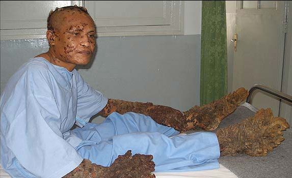 http://www.weirdasianews.com/wp-content/uploads/2008/04/tree-man-surgery.jpg
