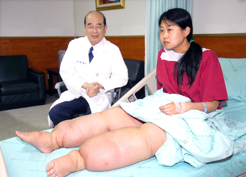wang-cheng Elephant Legs Woman Finds Hope Outside of China picture
