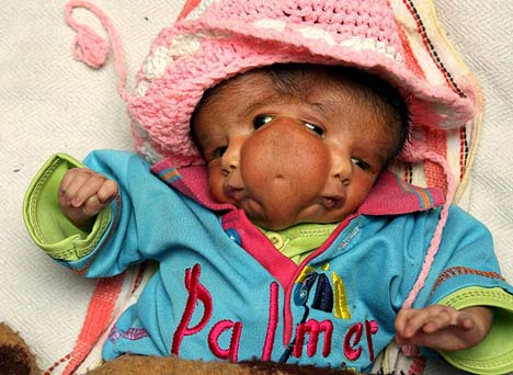 2face girl 2 Faced Baby Born in India picture