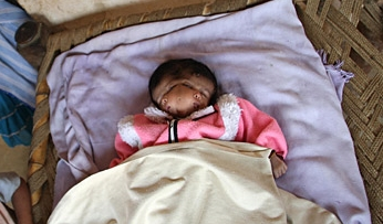 2faces 2 Faced Baby Born in India picture