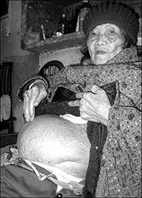 Woman Delivers Stone Baby After 60 Year Pregnancy picture