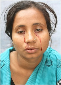 Indian Girl Cries Tears of Blood  picture