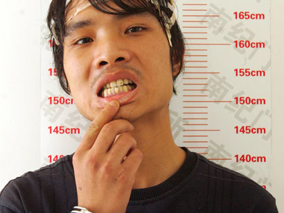 teeth Criminal Breaks In by Chewing Through Steel Bars picture