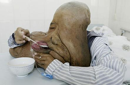 Chinese Elephant Man to get 33 Pound Tumor Removed picture
