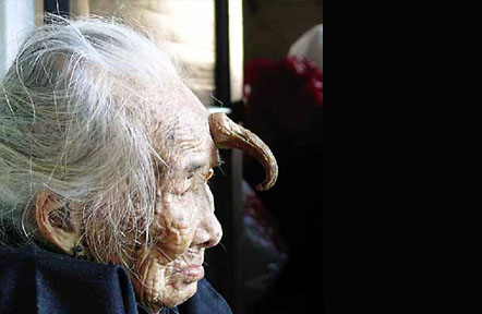 GrannyZhaoHornyGrandma Asias Top 10 Most Unique Deformities picture