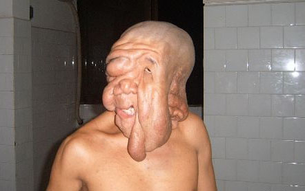 Asias Top 10 Most Unique Deformities picture