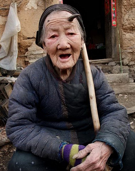 Chinese Woman Grows Horn on Head picture