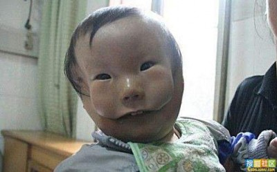 double face Baby in China Born with Second Face picture
