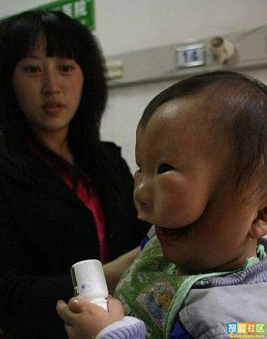 Baby in China Born with Second Face picture