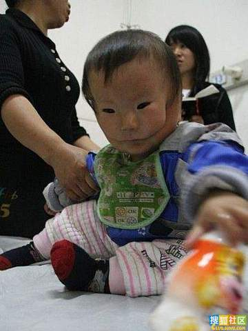 doubleface 4 Baby in China Born with Second Face picture