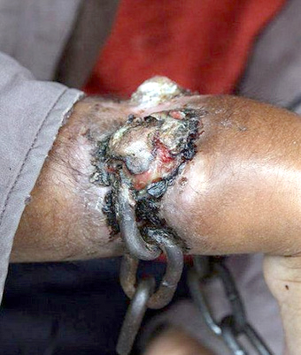 Prisoner's Shackles So Tight That Flesh Grows Over Them picture