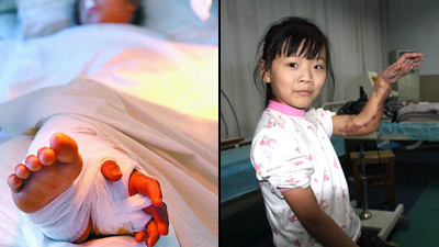 Chinese Girls Severed Hand Saved By Her Leg picture