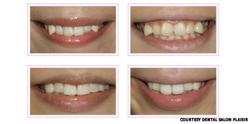 Teeth 500x248 New Fad in Japan Promises to Make Your Teeth Look Worse picture