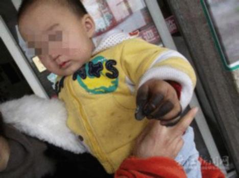 Exploding Coins Cause Burns on Chinese Babys Hands picture