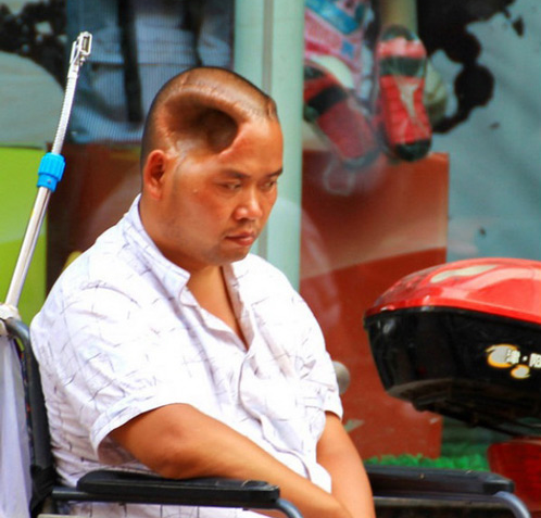 Chinese man with a hole in his head Chinese Man Living with Massive Hole in His Head picture