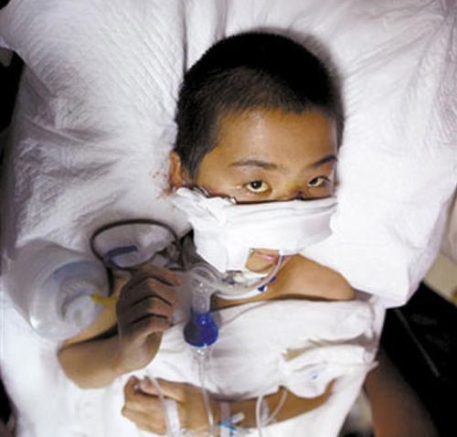 Chinese Kid Gets Inflated… In Coma for 8 Days picture