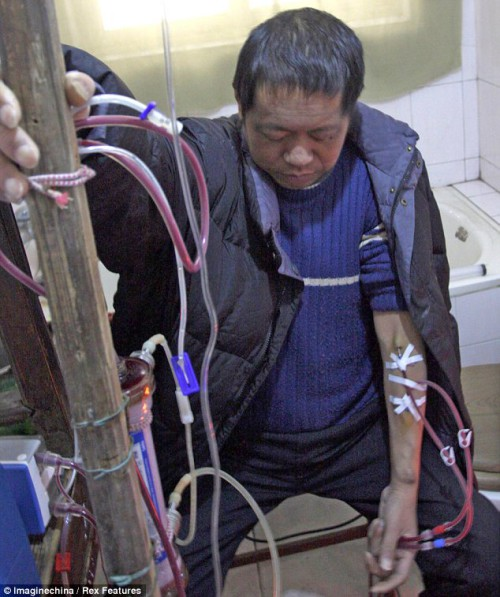 Chinese Man Still Alive After 13 Years of Homemade Dialysis picture