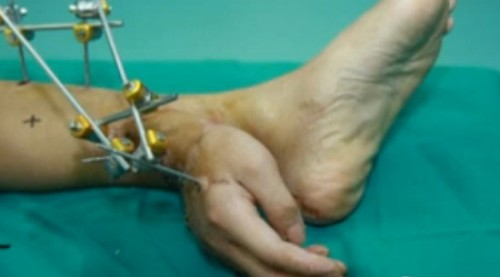 Severed Hand Grafted onto Man's Foot After Drilling Accident picture