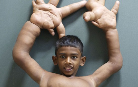 "Hand Surgery For Indian ""Devil Child"" A Success"